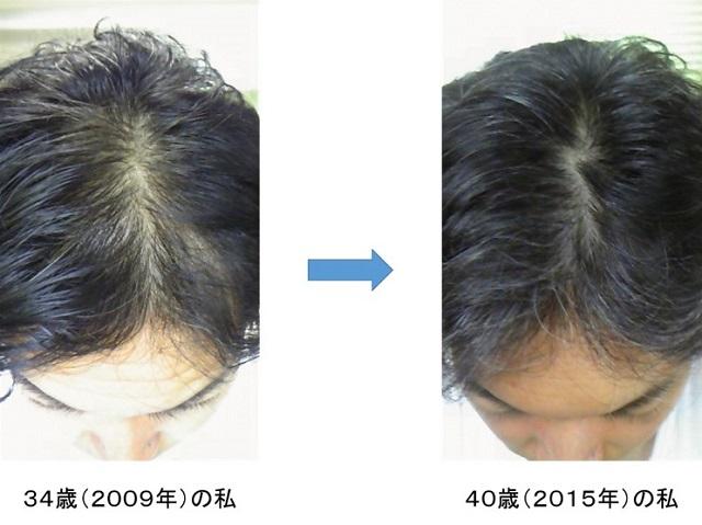 プロペシア・フィンペシアによる頭頂部の薄毛改善