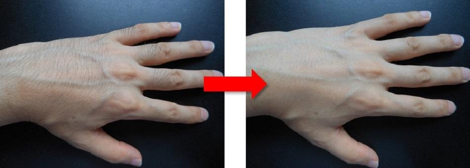 手の甲の体毛処理