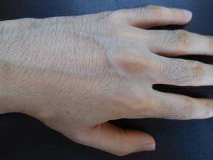 ミノキシジル使用2か月後手の甲
