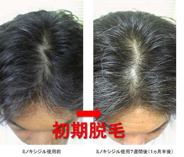 ミノキシジル使用1ヵ月半後の頭頂部