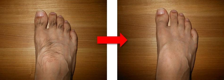 足の甲の体毛処理