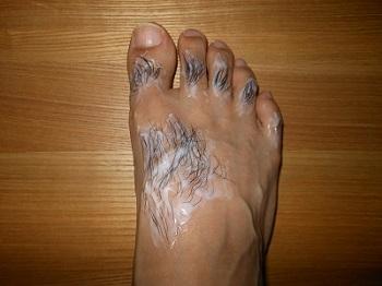 足の甲の体毛処理(クリーム塗布)