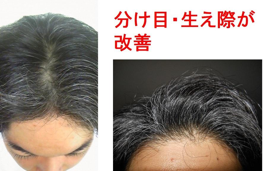 ミノキシジル使用4ヵ月後頭頂部生え際