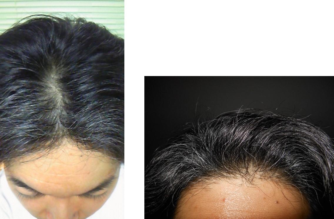 ミノキシジル使用4ヵ月半後頭頂部生え際