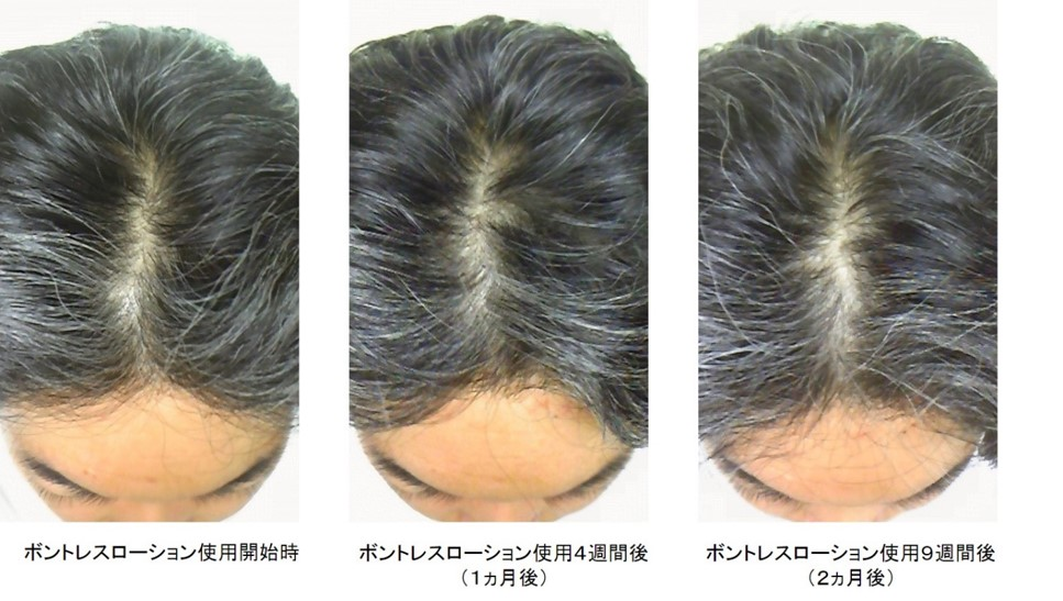 ボントレスローション使用2ヵ月後頭頂部