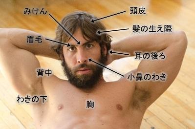 脂漏性皮膚炎の症状が現れやすい部位