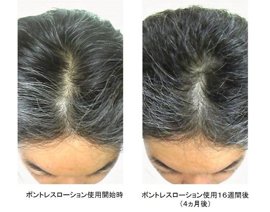 ボントレスローション使用4ヵ月後の頭頂部