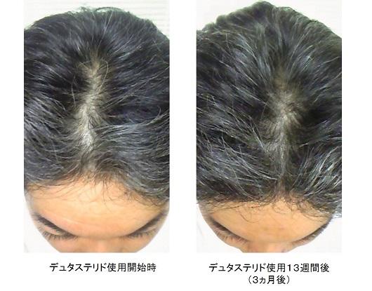 デュタステリド使用3ヵ月後の頭頂部の変化