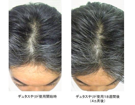 デュタステリド使用4ヵ月後の頭頂部の変化
