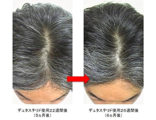 デュタステリド使用6ヵ月後の頭頂部の変化