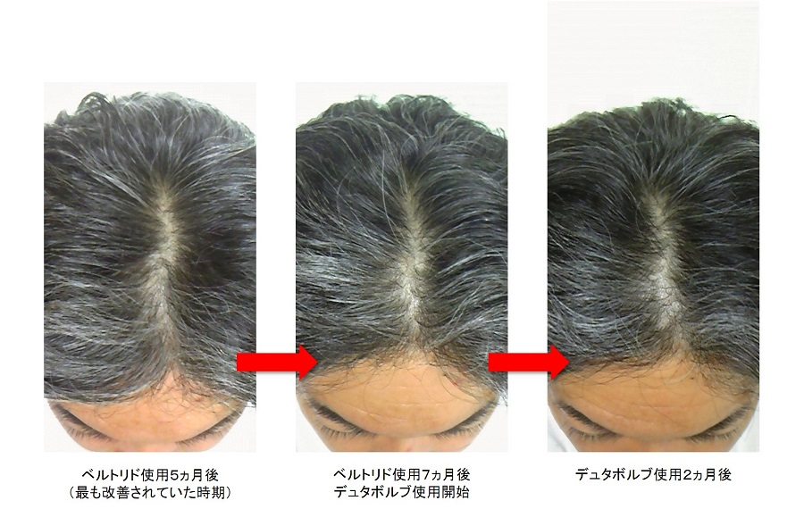 デュタボルブ使用2ヵ月後の頭頂部