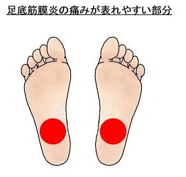 足底筋膜炎の痛みが表れやすい部分