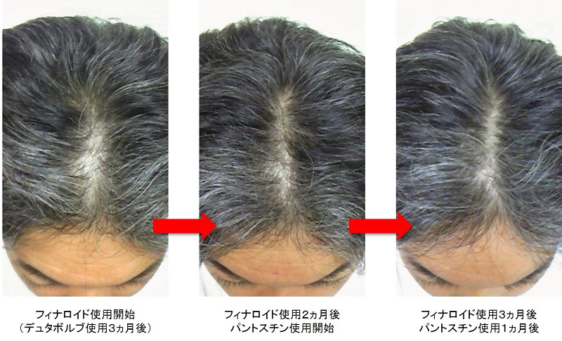 フィナロイド・パントスチン使用頭頂部