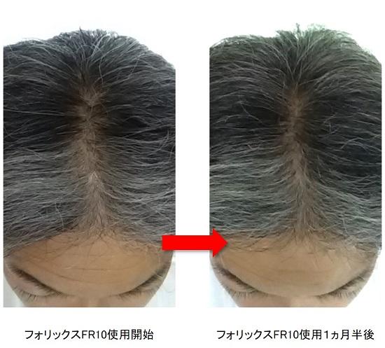 フォリックス使用1ヵ月半後の頭頂部