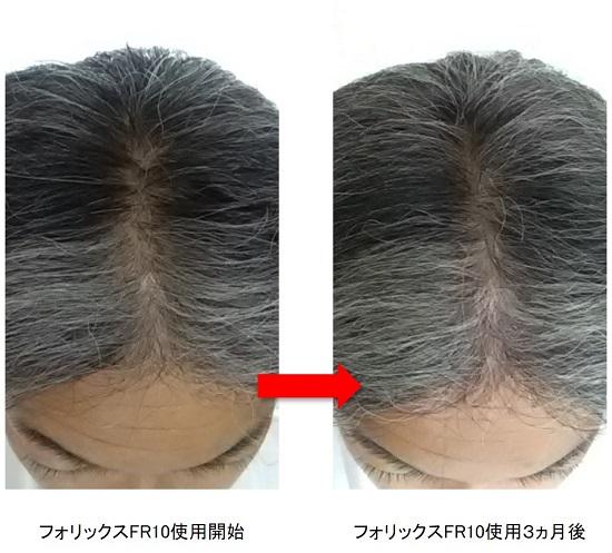 フォリックスFR10使用3ヵ月後の頭頂部