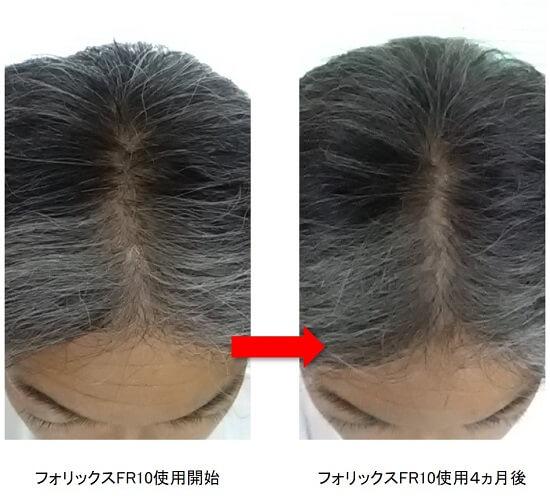 フォリックスFR10使用4ヵ月後の頭頂部