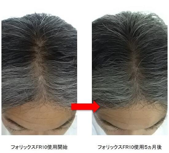 フォリックス使用5ヵ月後の頭頂部