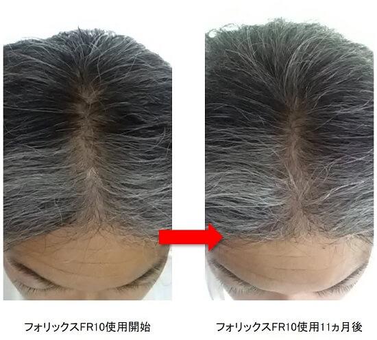 フォリックスFR10使用11ヵ月後の頭頂部